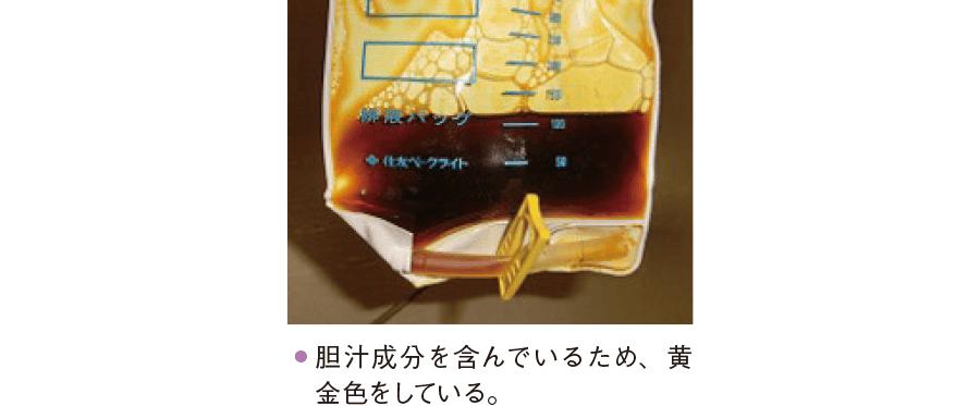 胆管チューブの排液