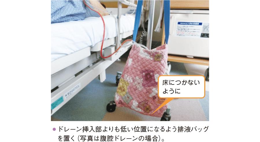 排液バッグの設置方法