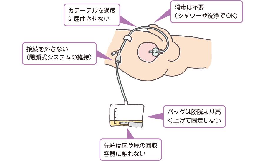 尿道カテーテル留置中の感染上の注意点
