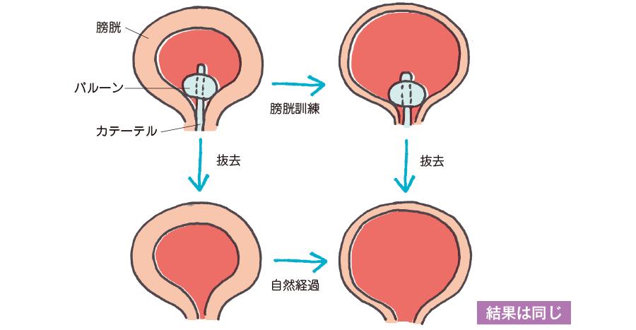 尿道カテーテル留置が長期になったとき