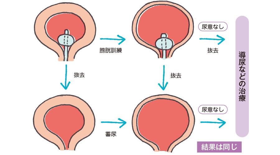 膀胱に関する神経を損傷した可能性があるとき