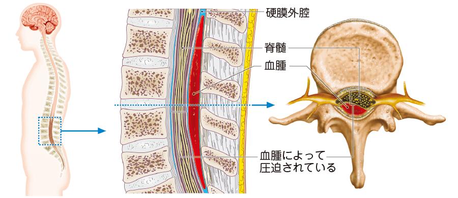 硬膜外カテーテルによる硬膜外血...