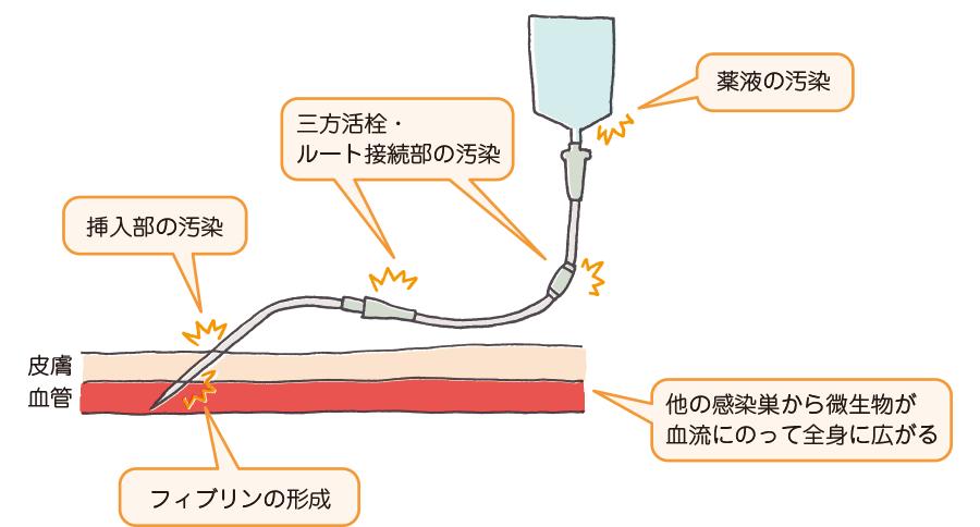 血管内カテーテル留置中の患者における微生物汚染源