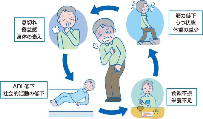 慢性呼吸器疾患の負のサイクル