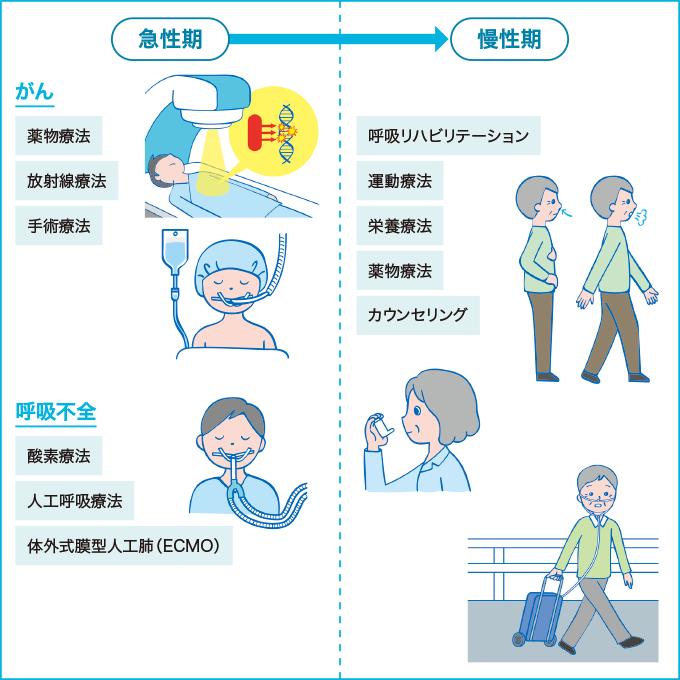 呼吸器疾患の治療のイメージ
