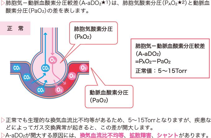 肺胞気‐動脈血酸素分圧較差(A-aDO2)