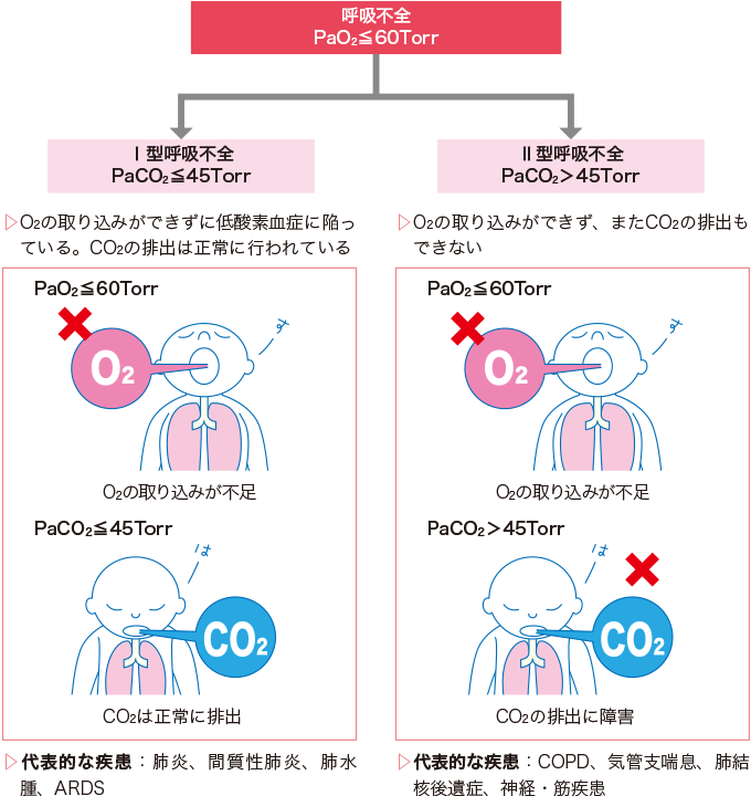 呼吸不全の分類