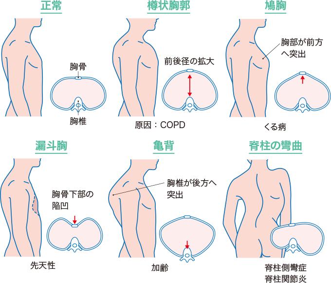 胸郭の変形の例