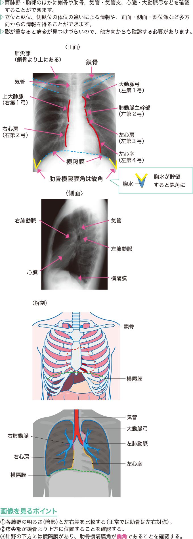 胸部X線の正常画像