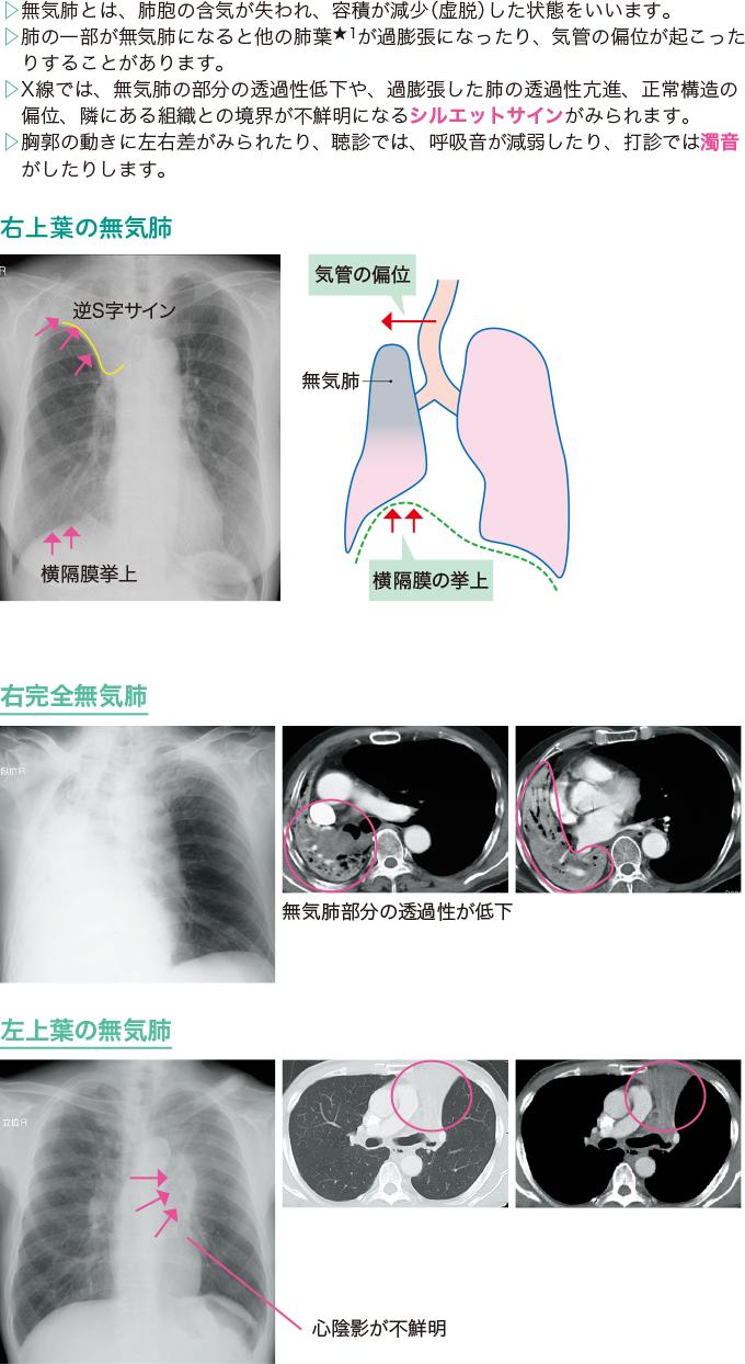 無気肺のX線、CT