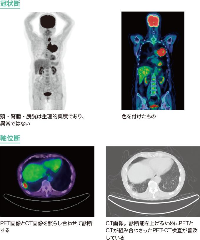 肺がんのPET画像