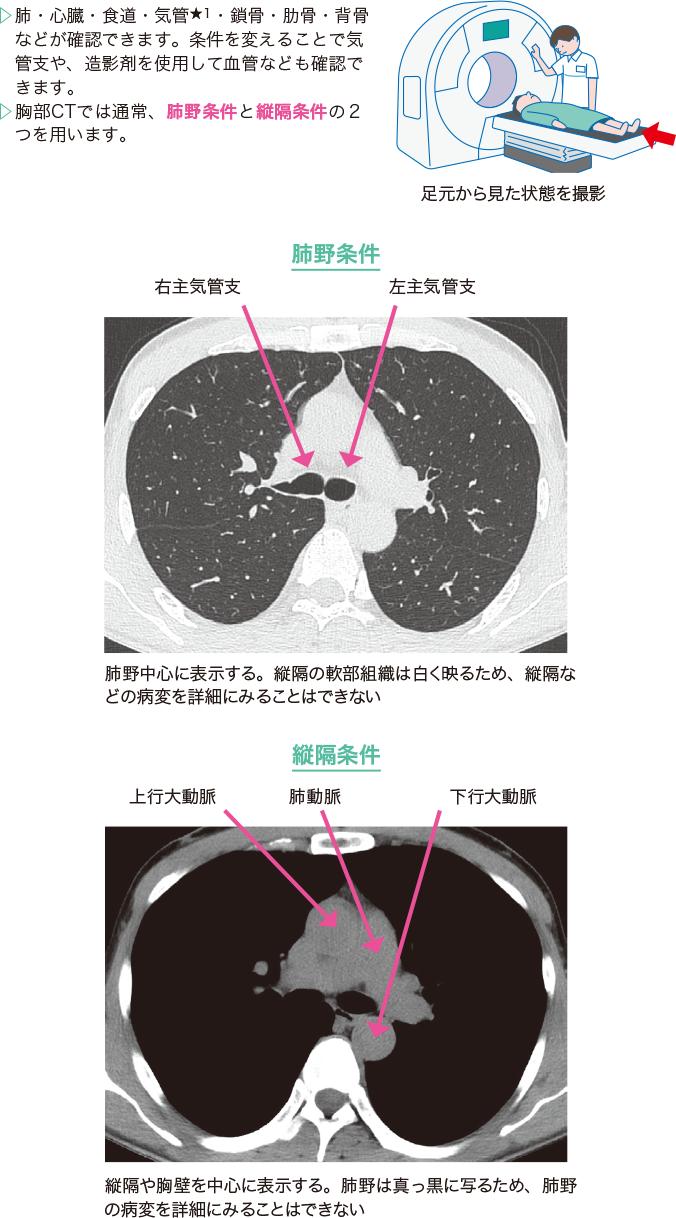 胸部CTの種類