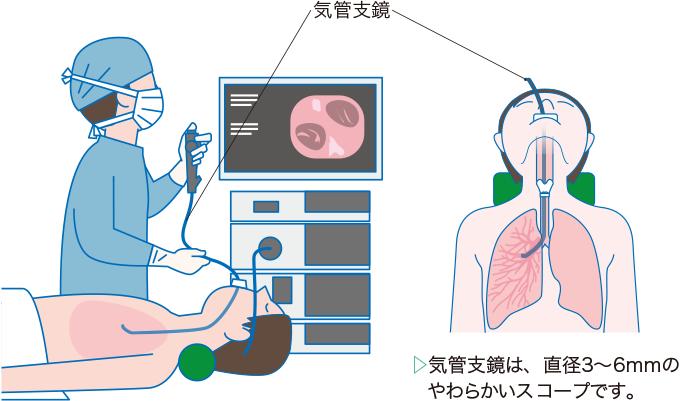 気管支鏡検査のイメージ