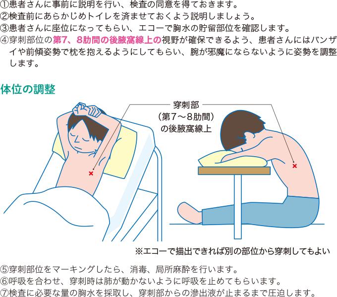 胸水検査の流れと注意点
