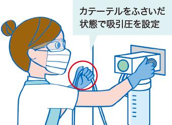 吸引圧の設定