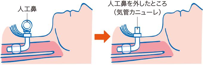 気管カニューレと人工鼻の接続部