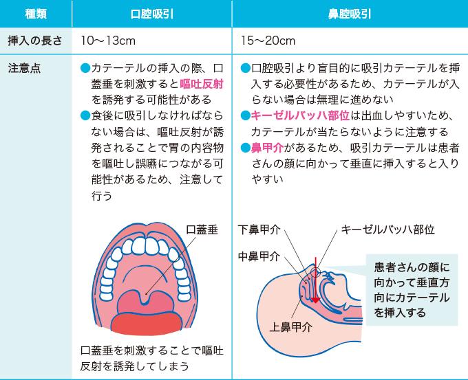 口腔・鼻腔吸引の注意点