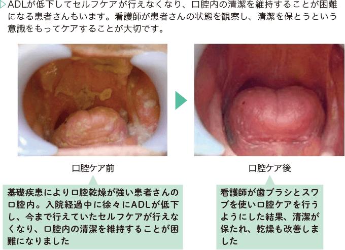 図11:口腔の清潔を保つ