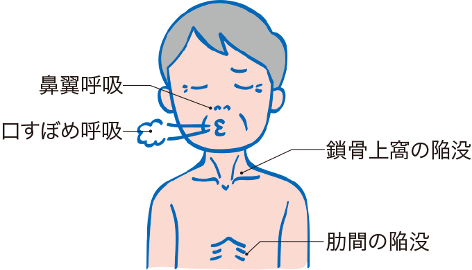 図7:呼吸状態の観察