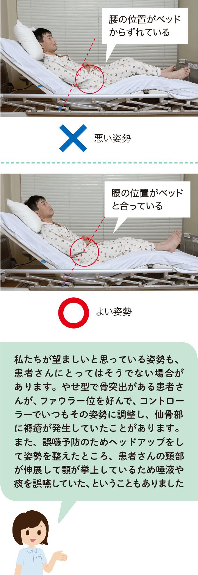 図9:悪い姿勢とよい姿勢