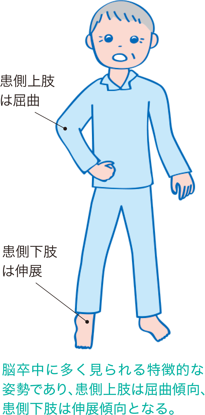 図6ウェルニッケ・マン姿勢