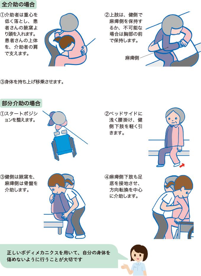 図8自力座位保持が困難な患者さんの移乗の方法