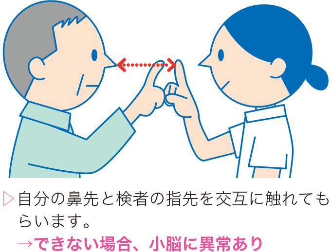 図3鼻指鼻試験