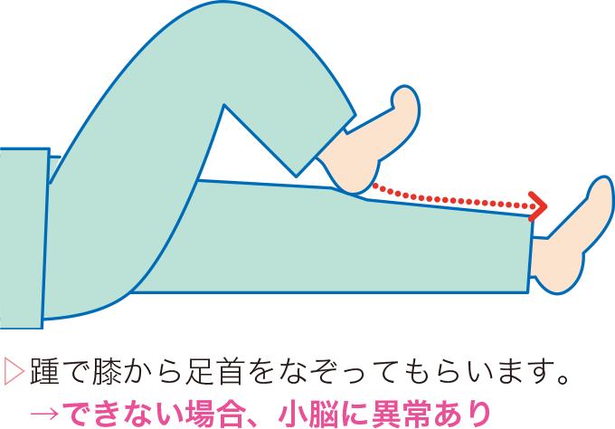 図4踵膝試験