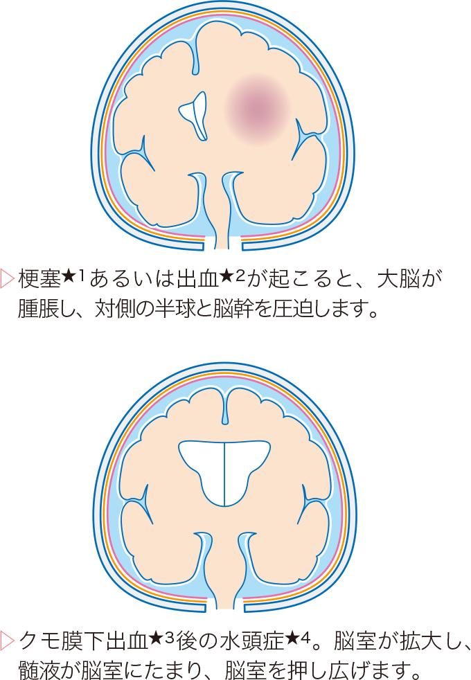 図3頭蓋内圧亢進状態の脳