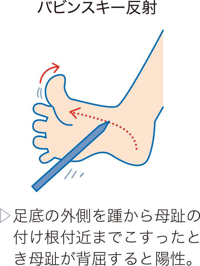図14病的反射の例