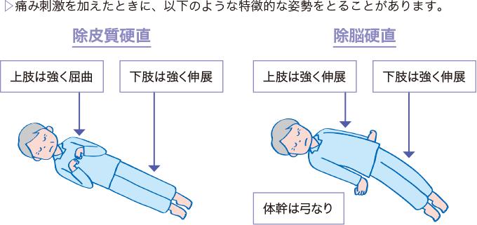 図4姿勢反射