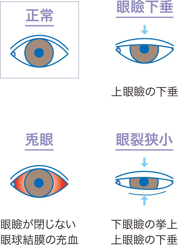 図5眼瞼のみかた