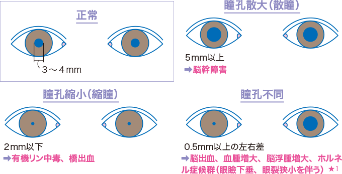 図8瞳孔の大きさのみかた