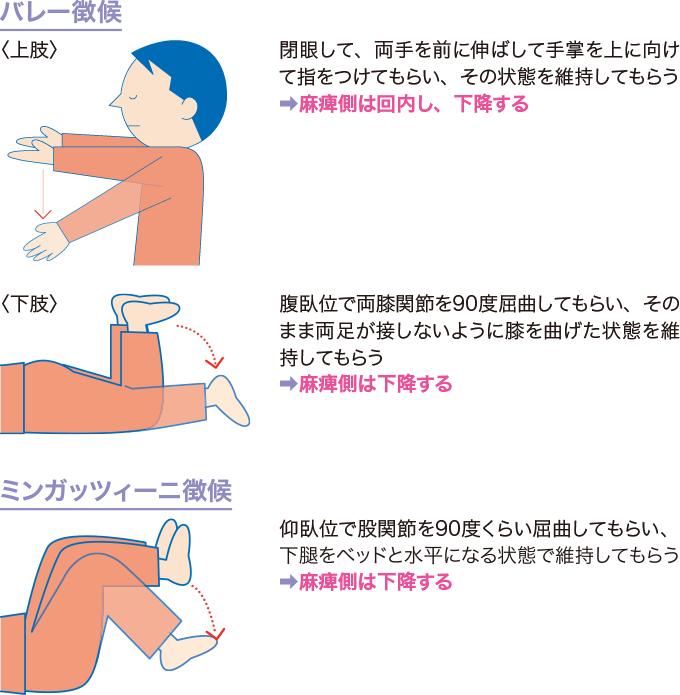 図12運動麻痺のみかた