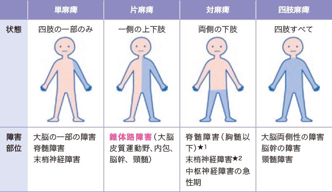 表5麻痺の種類
