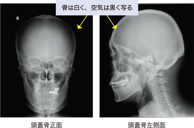 図1頭部のX線画像
