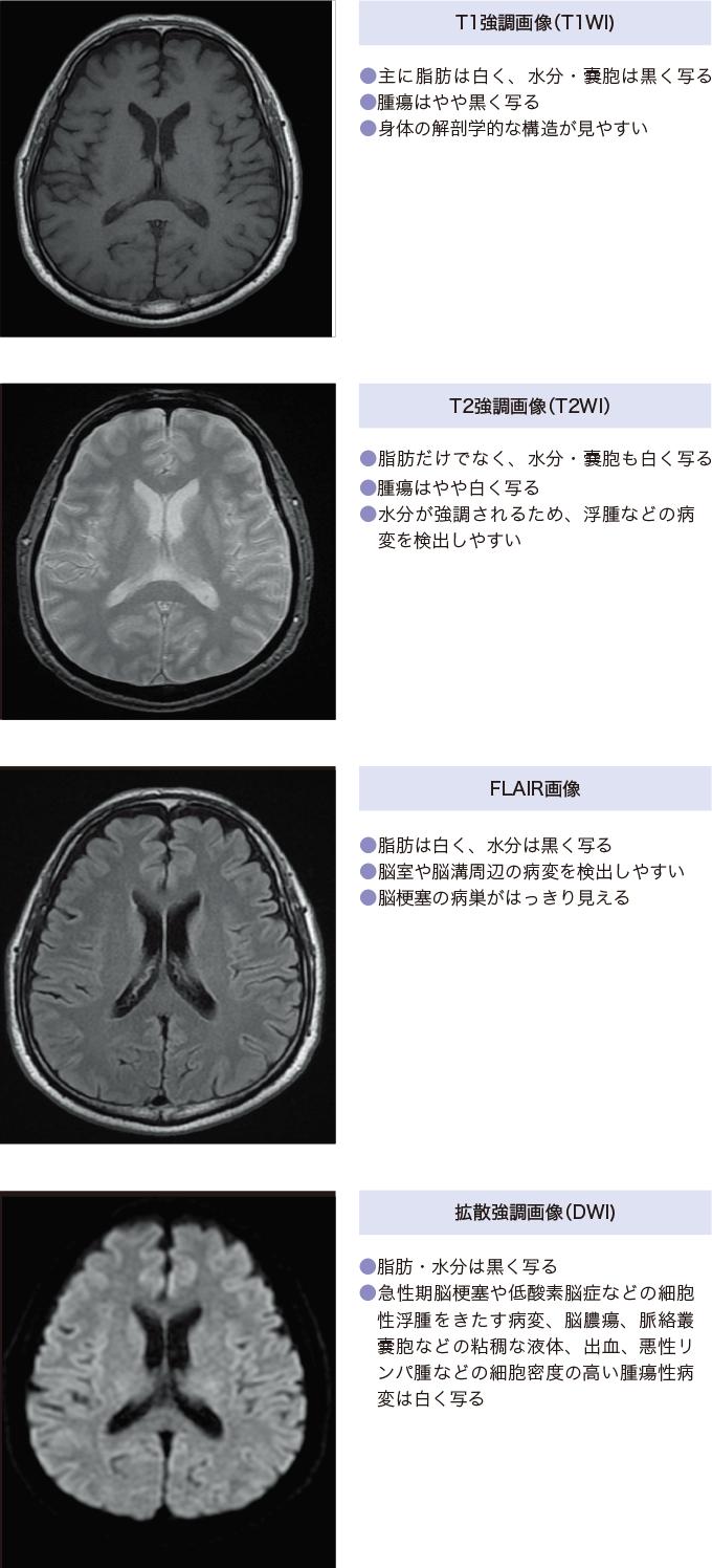 図10MRI画像の特徴と種類