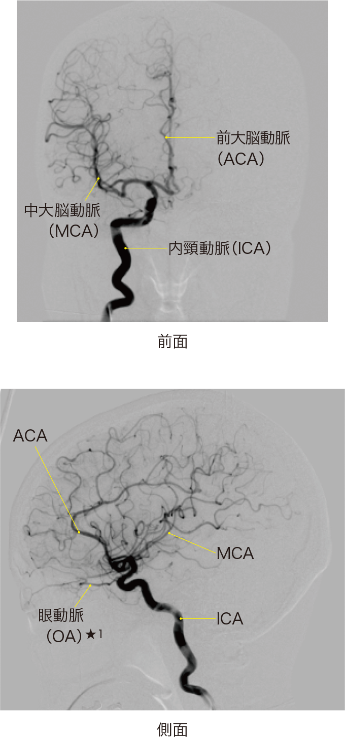 図11右内頸動脈のDSA(digital subtraction angiography)