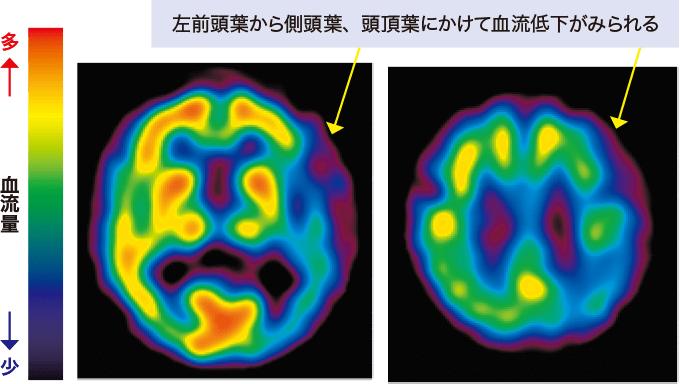 図14前頭側頭型認知症のSPECTSPECT(single photon emission computed tomography)画像
