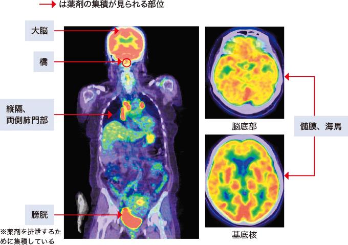図15神経サルコイドーシスのPET画像