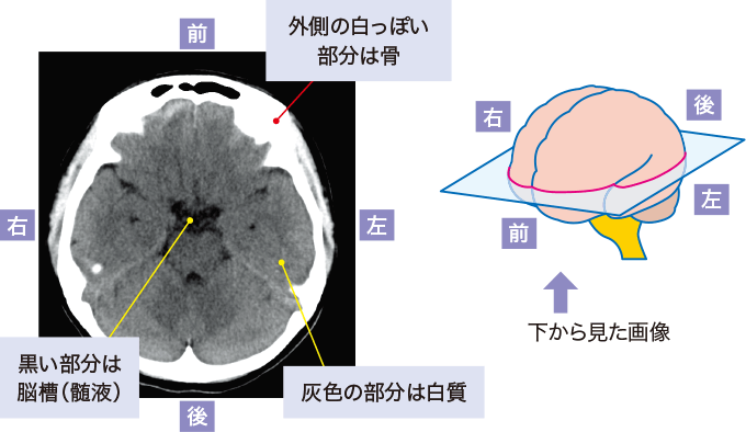 図3正常頭部CT