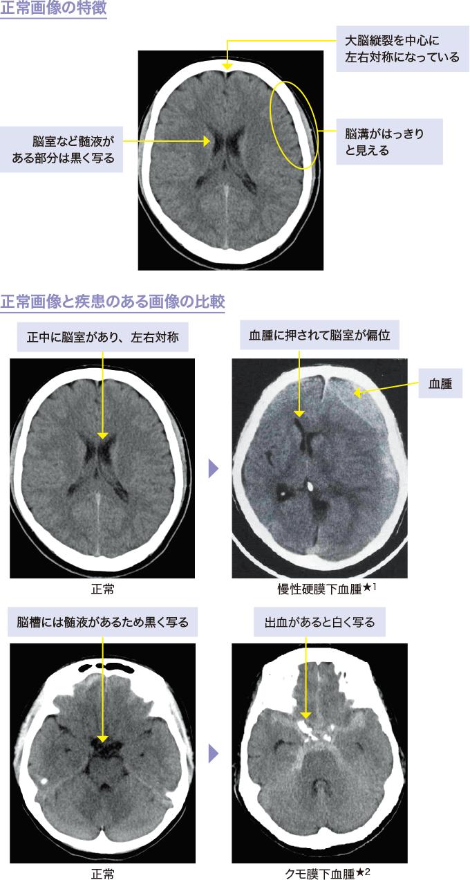 図5脳のCT画像のみかた