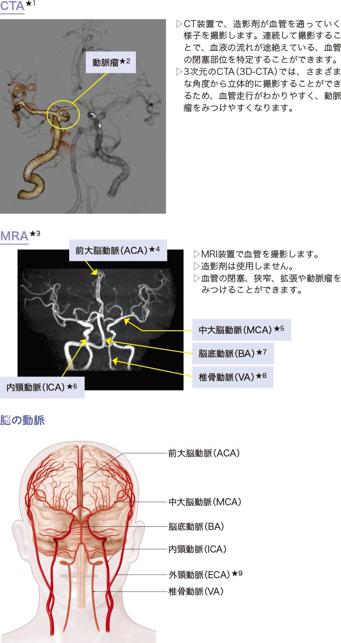 図6CT、MRIを使った血管の撮影