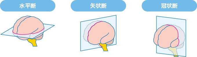 図7MRIの断面