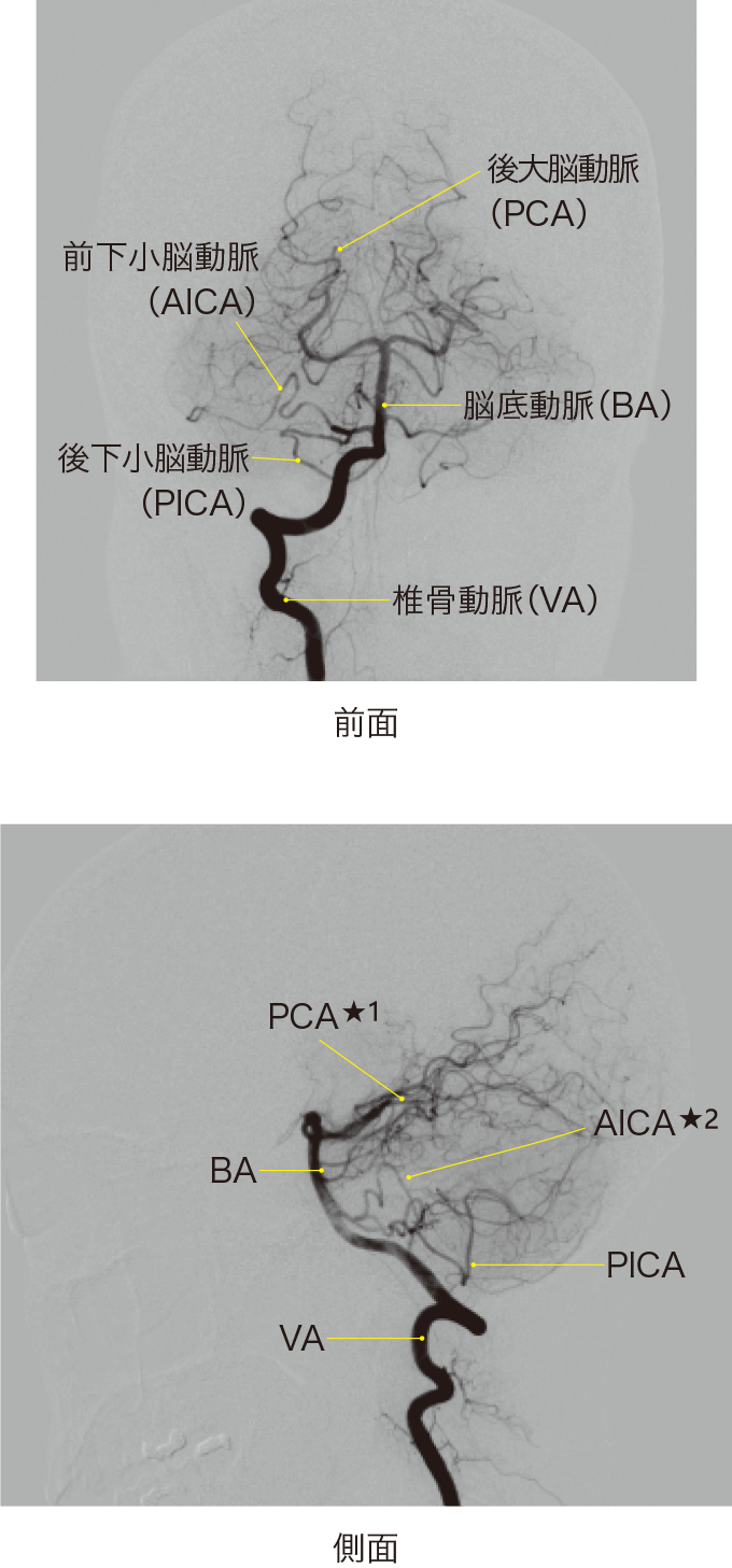 図12右椎骨動脈のDSA