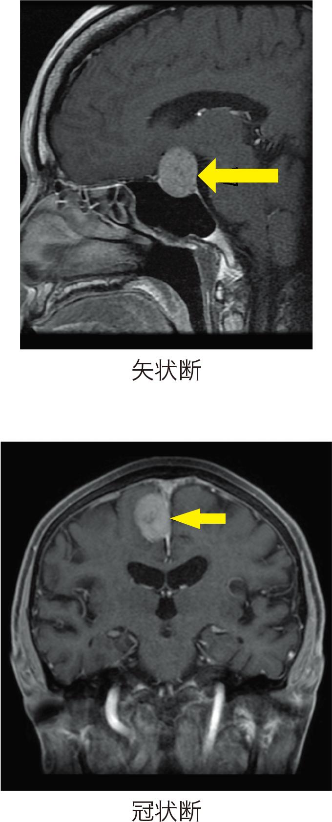 図9脳腫瘍のMRI