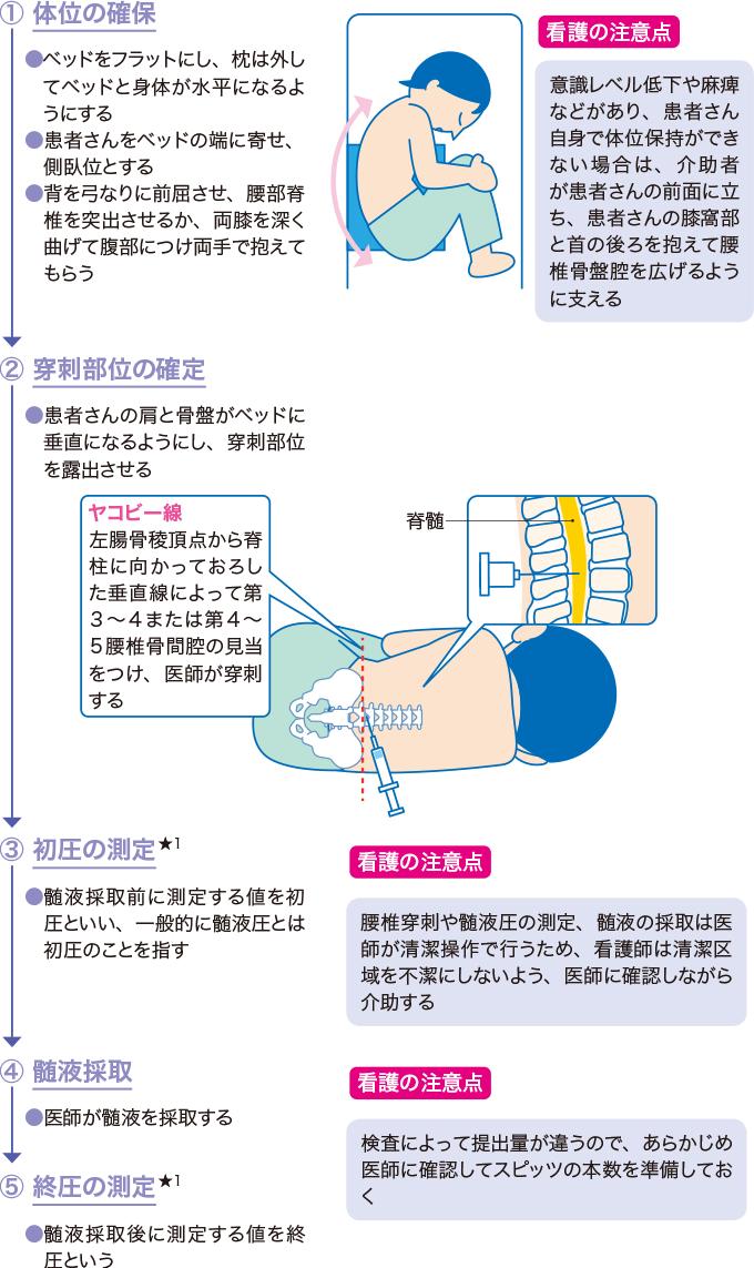 図1腰椎穿刺の流れと看護のポイント