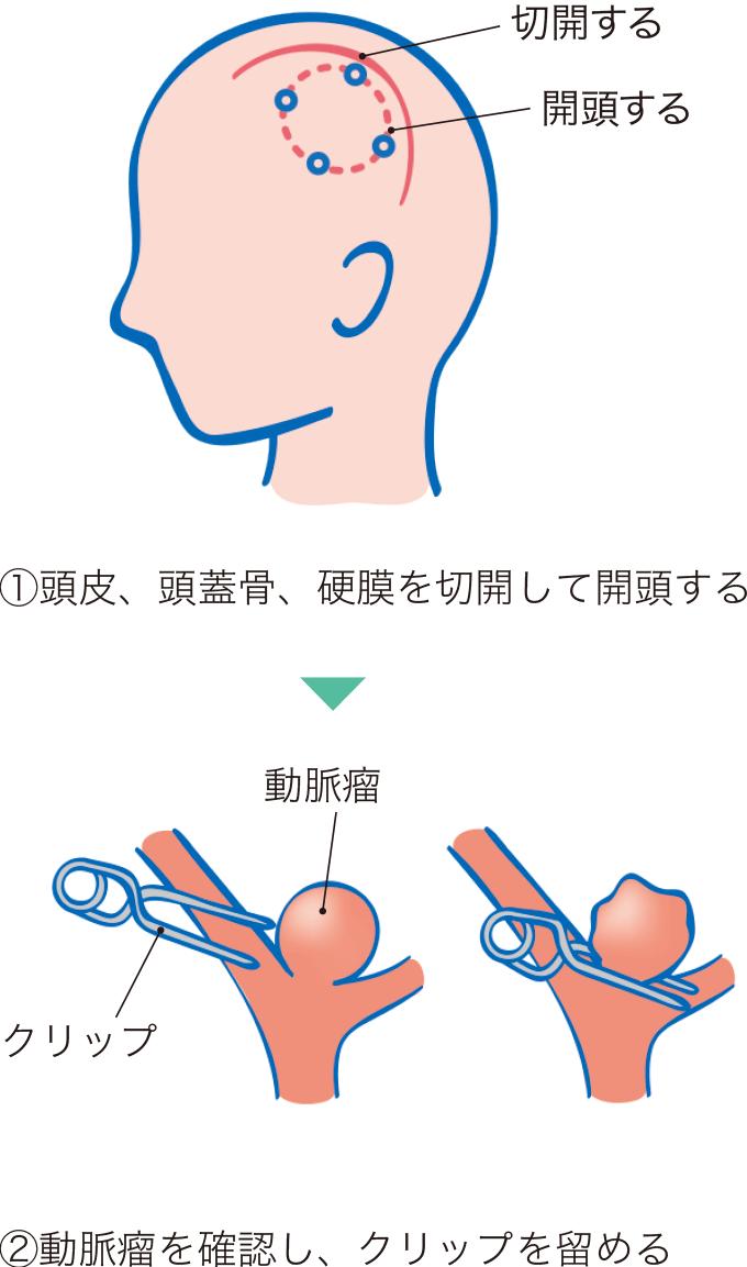 図2脳動脈瘤クリッピング術