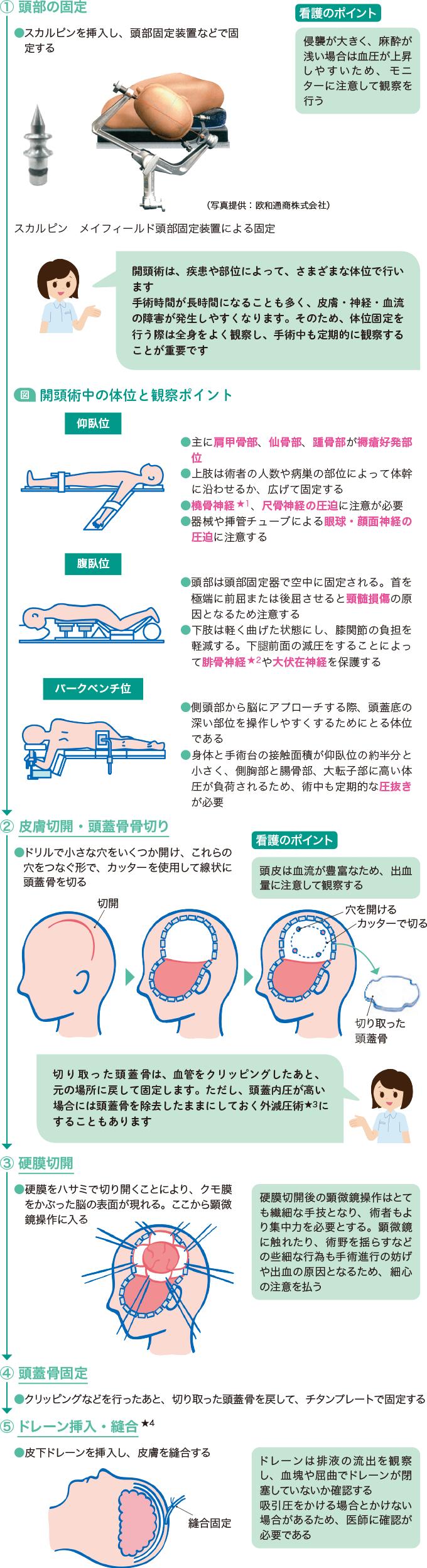 図4開頭術の流れと看護のポイント