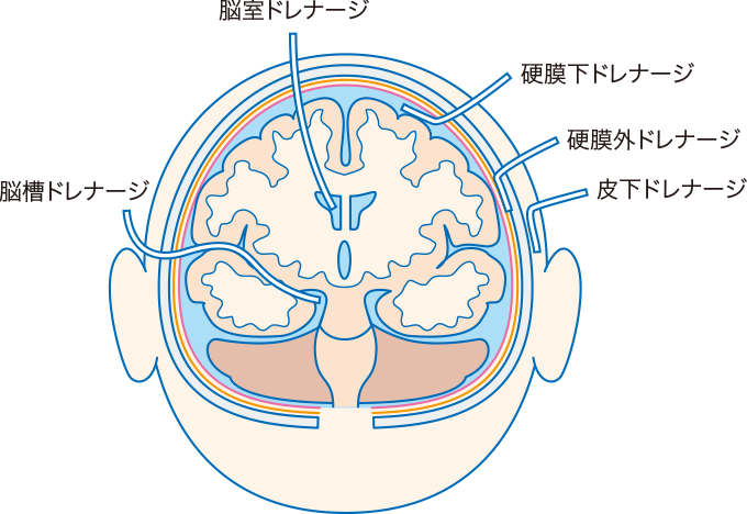 図1脳神経領域のドレナージ